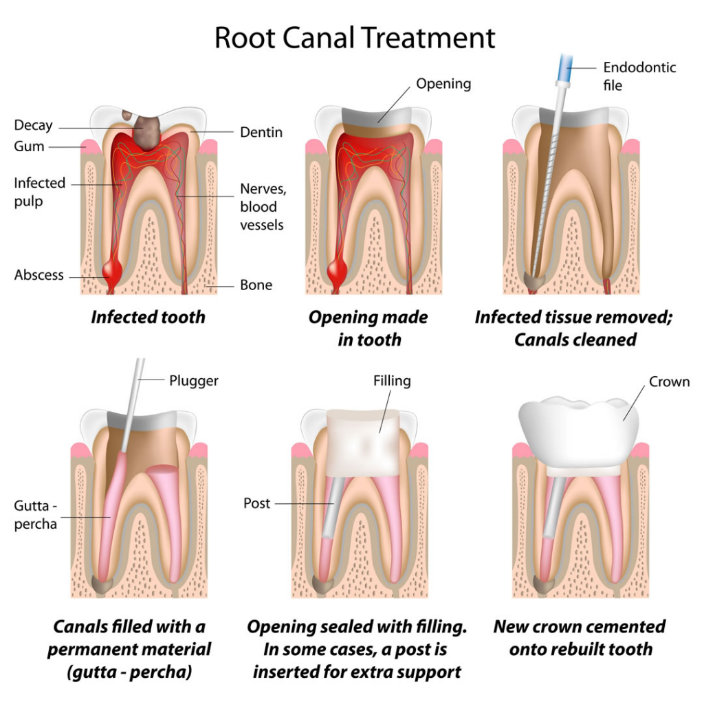 tooth canal treatment