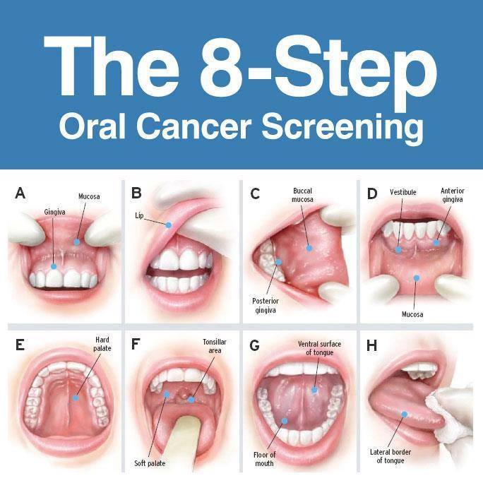 screening cancer oral