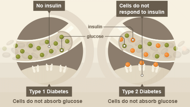 Image result for Diabetes type 1 type 2