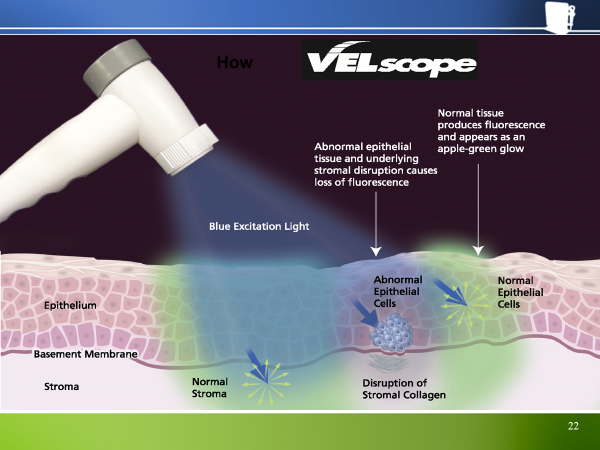 velscope - screening cancer oral