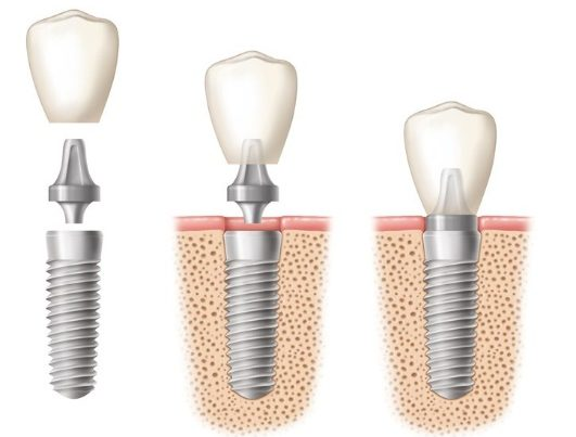 Description: Image result for dental implants