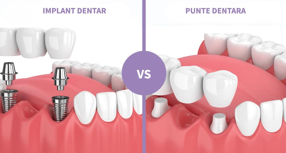 Implant dentar vs punte dentara